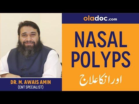 how-to-treat-nasal-polyps|-naak-ki-gadoor-ka-ilaj/elaj-urdu-hindi|-nasal-polyps-symptoms-alamat