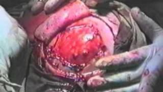 Трепанация черепа -- trepanation cranium