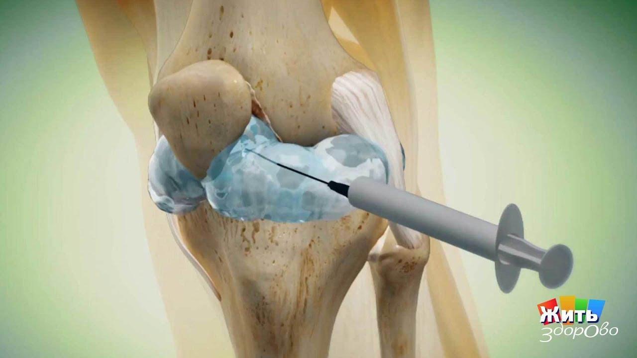 Артроз коленного сустава лечение жить здорово остеоартроз в таранно ладьевидном суставе 1 степени