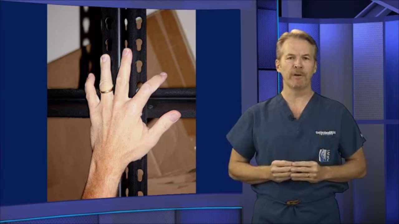 Jimmy Fallon Finger Injury Ring Avulsion Youtube