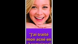 traitement naturel en 3 semaines contre l'acné