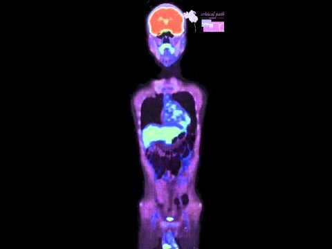 Positron Emission Tomography - Computerized Tomography Merge