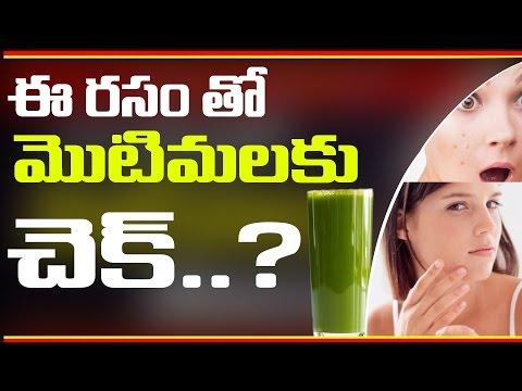 ఒక్క చిట్కా తో మొటిమలు పోతాయి - Lose Pimples Fast | Telugu Health Tips