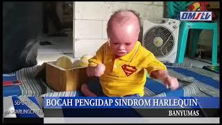 ACEH, KOMPAS.TV - Bocah 8 tahun yang menderita Progeria, penyakit yang membuat fisik seseorang menua.