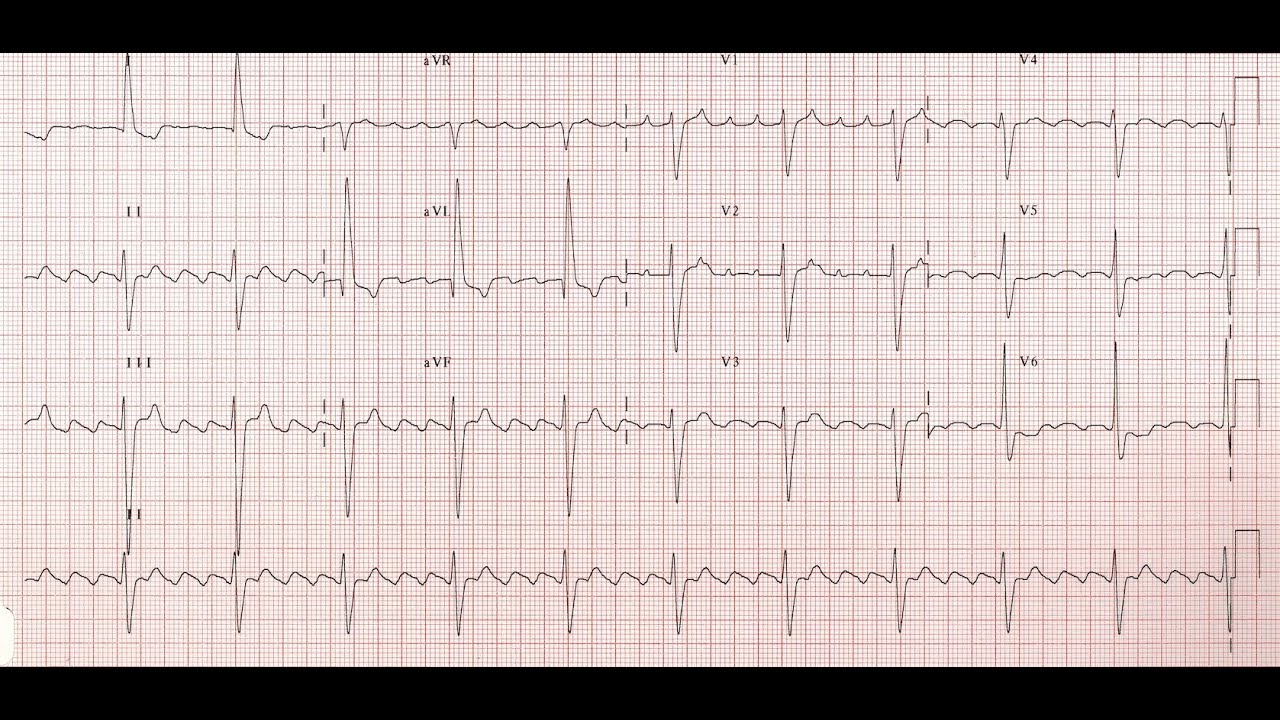how to read 12 lead ecg youtube
