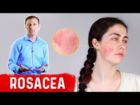 What Can Be Done for Rosacea