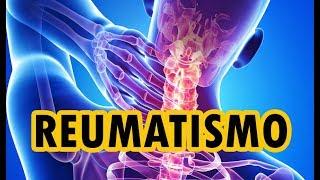 Artrite rigidez como reumatóide é da a