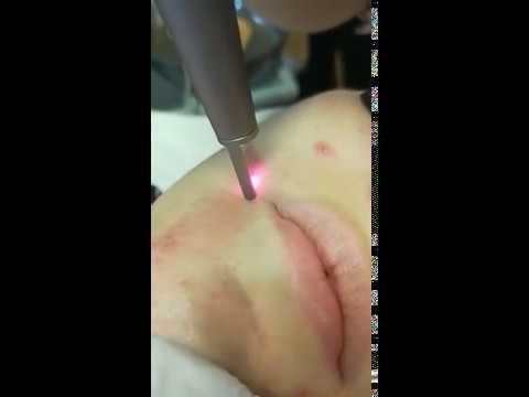 1064QPH03 Laser Tattoo Removal Pigmentation Luxurious Equipment