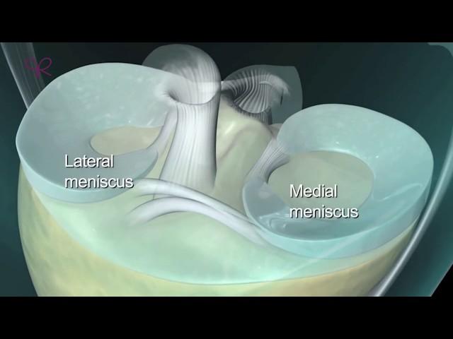 Poliklinika Ribnjak - Artroskopija koljena