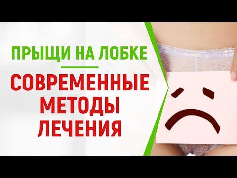 Прыщи на лобковой части у женщин причины лечение в домашних условиях