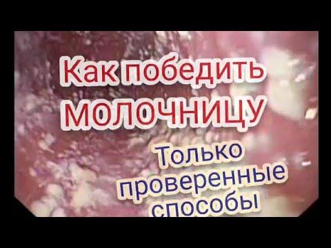 МОЛОЧНИЦА и Кандидоз без рецедива.Авторская программа без антибиотиков.