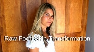 Raw Food Skin Before & After 801010 Transformation (photos)