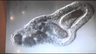 Amoeba eats two paramecia (Amoeba