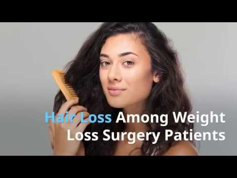 Dr V Basics Hair Loss After Weight Loss Surgery Youtube