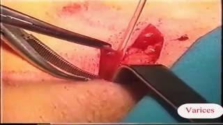 Cierre varicosas venas de para procedimiento