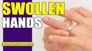 What Causes Swollen Hands? | Reduce Swelling