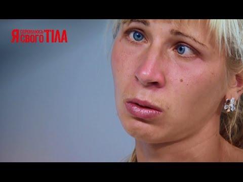 Юлию Волынец из-за косоглазия бросил муж - Я соромлюсь свого тіла - 26.03.15