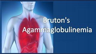 Bruton's agammaglobulinemia
