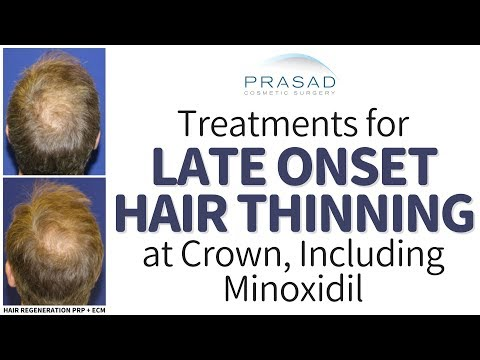 How Minoxidil Works Particularly Well for Late Onset Crown Hair Thinning; and More Effective Options