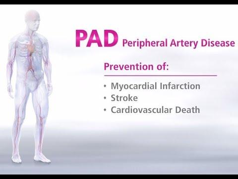 What Is Peripheral Artery Disease - Mechanism Of Disease