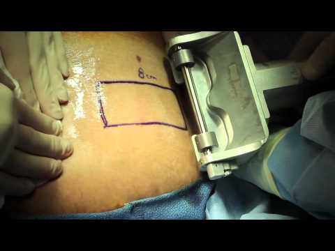Live Surgery Split Thickness Skin Graft.m4v