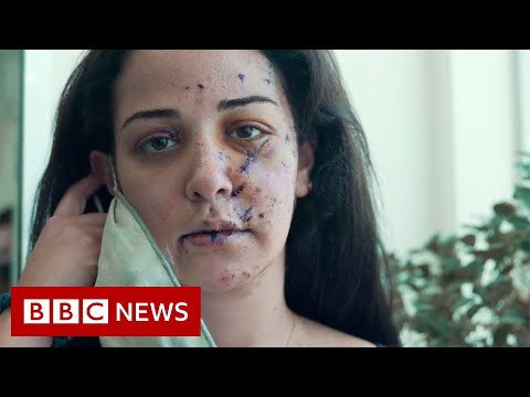 Fixing the scars of Beirut's explosion - BBC News