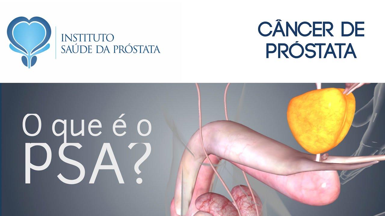 cancer de prostata o que e