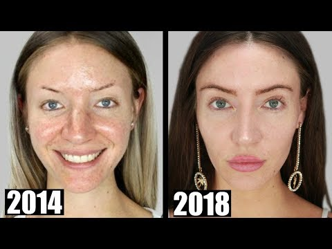 What I've Had Done to My Face | My Transformation