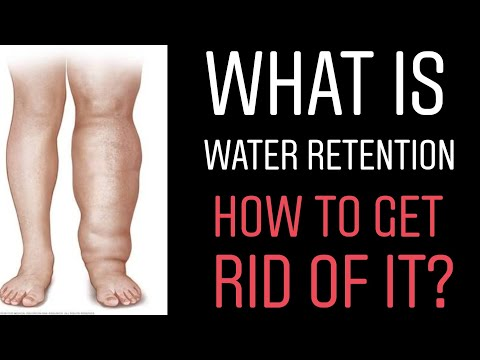WATER RETENTION : HOW TO GET RID OF WATER RETENTION - HOME REMEDY