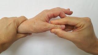 Testul Grind | folosit in suspiciunea artritei degenerative a policelui(Testul Grind evalueaza prezenta artritei trapezo-metacarpiene (artrita carpo metacarpiana sau artrita degenerativa a bazei policelui). Este cea mai frecventa ..., 2016-07-01T07:35:28.000Z)