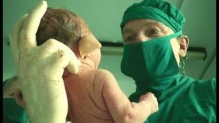 婴儿天生一张猪脸,妈妈害怕失去他,18年不让出家门 thumbnail