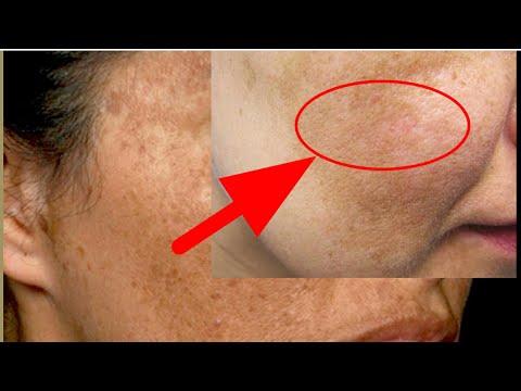 Куешдан тушган юздаги догларни окартирувчи никоб,избавиться пигментация вокруг глаз и на лице
