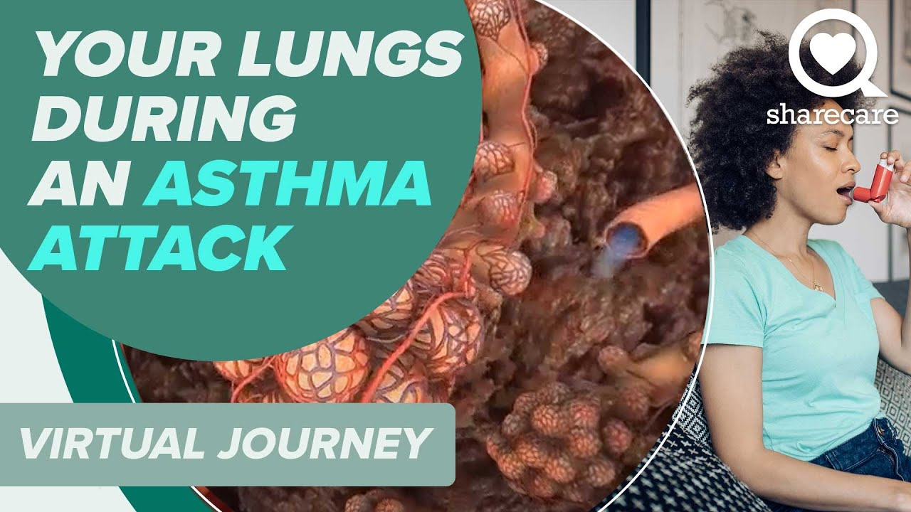 Patient Journey  What Happens In Your Lungs During An