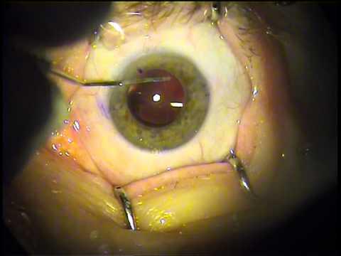 Незрелая катаракта, симптомы, стадии развития, лечение на