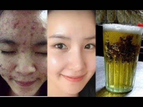 Trị sạch mụn, dưỡng trắng da nhờ rửa mặt với bia như thế này liên tục trong 5 ngày