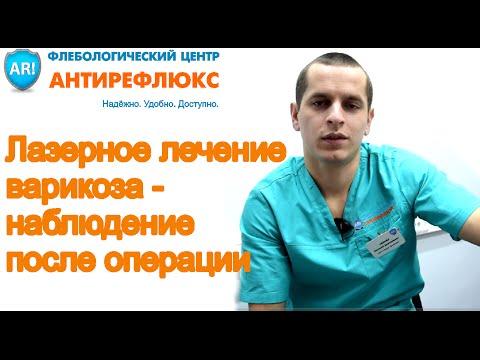 лечение варикоза склеротерапия фото до и после