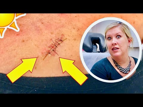 SKIN CANCER SURGERY 😧 Removing precancerous skin growth + 5 stitches!