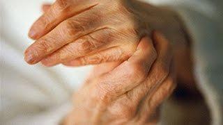 Боли в суставах пальцев рук. Мазь от боли в суставах.(Мы поможем Вам: http://goo.gl/cH1Ulu Боли в суставах пальцев рук Сильные боли в ногах, боли в суставах при..., 2016-01-15T13:07:20.000Z)