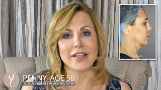 How Will I Look 19 Months After a Y LIFT®? | Instant, Non Surgical Facelift