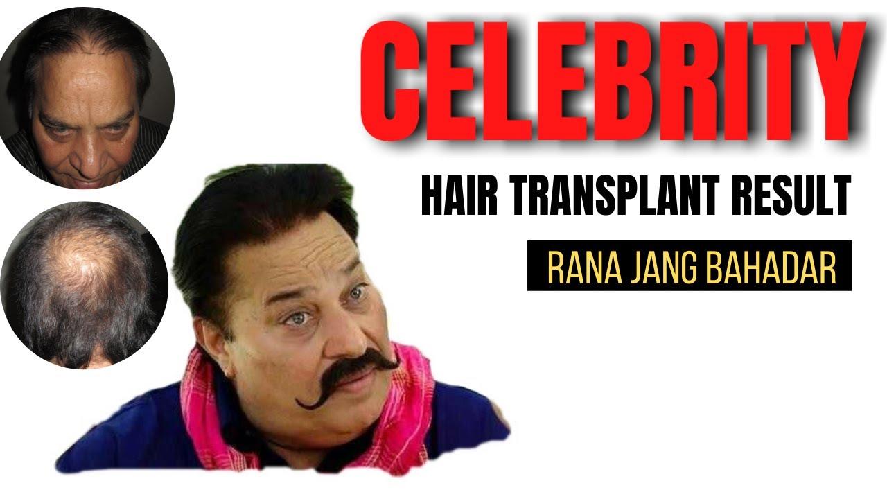 Celebrity hair transplantation in India | Chandigarh, Ludhiana, Delhi