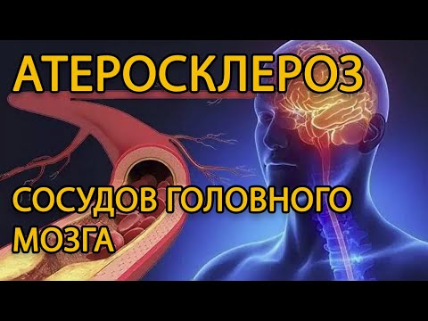 Атеросклероз сосудов головного мозга, атеросклеротическая энцефалопатия