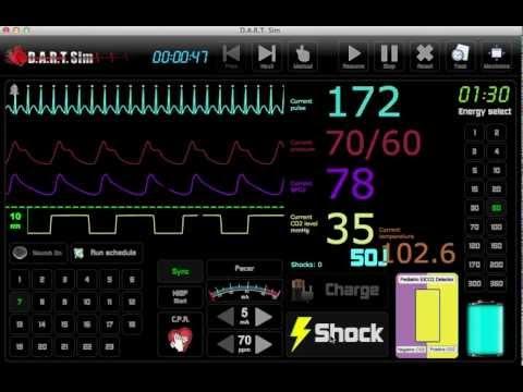 EKG Simulator - ECG Simulator