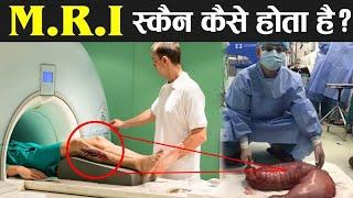 कैसे होता है MRI SCAN आज देखलो खुल्लम खुल्ला how mri scan can be done ! mri scan facts