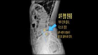 FCST 생기나라 - 요통, 허리디스크 치료 2019.…
