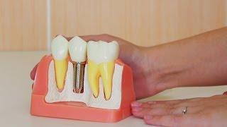 Диоксид циркония . Протезирование зубов в клинике