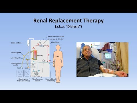 Acute Kidney Injury (Part 3/3 - Treatment And Complications)