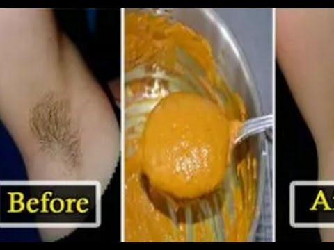 These Natural Remes To Remove Underarm Hair Can Do Wonders