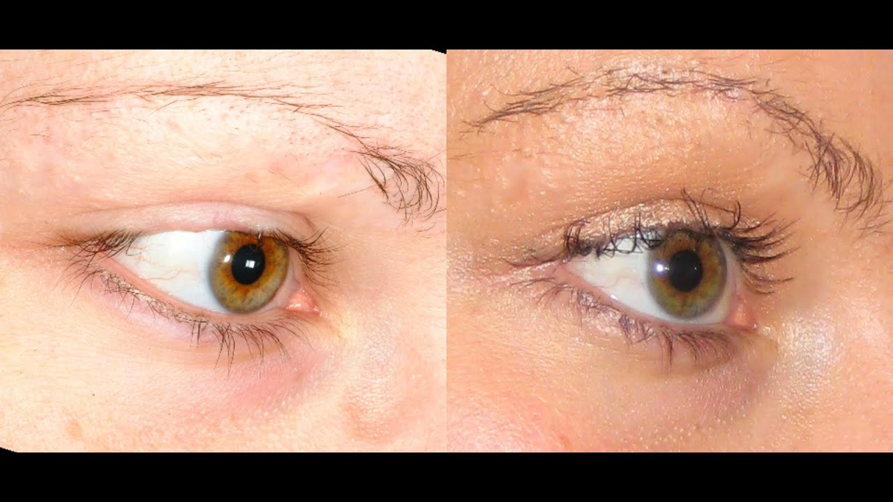 View Male Eyebrow Implants Images
