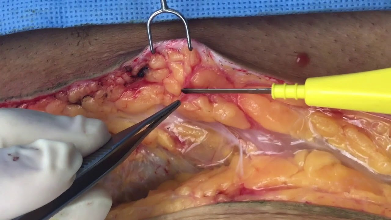 Image result for Superficial Fascia