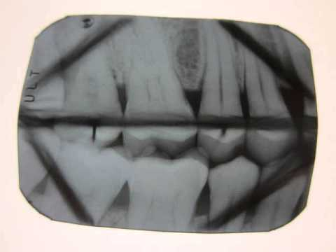 Radiographic Film Error: Bent Film